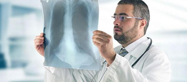 Médico viendo radiografía para informe respuesta motivada